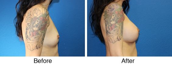 Types of breast augmentation surgery